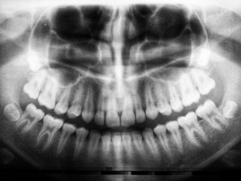 x-ray image of a set of healthy teeth and wisdom tooth