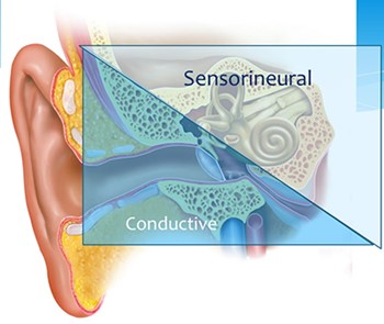 graphic of hearing loss